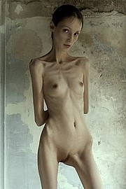 nude_extremely_skinny_girls03.jpg